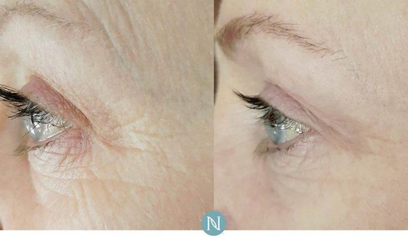 nerium anti aging cream